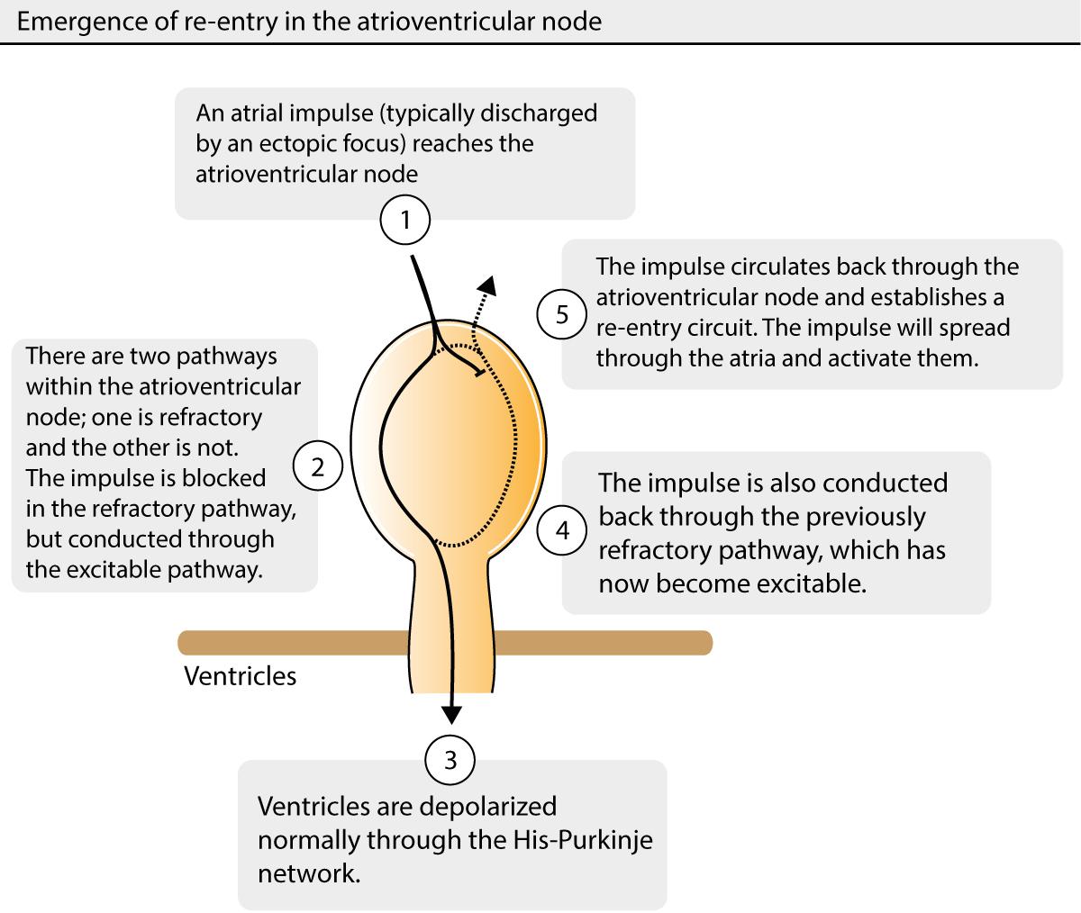 Figure 1. Mechanism leading to atrioventricular nodal reentrant tachycardia (AVNRT).
