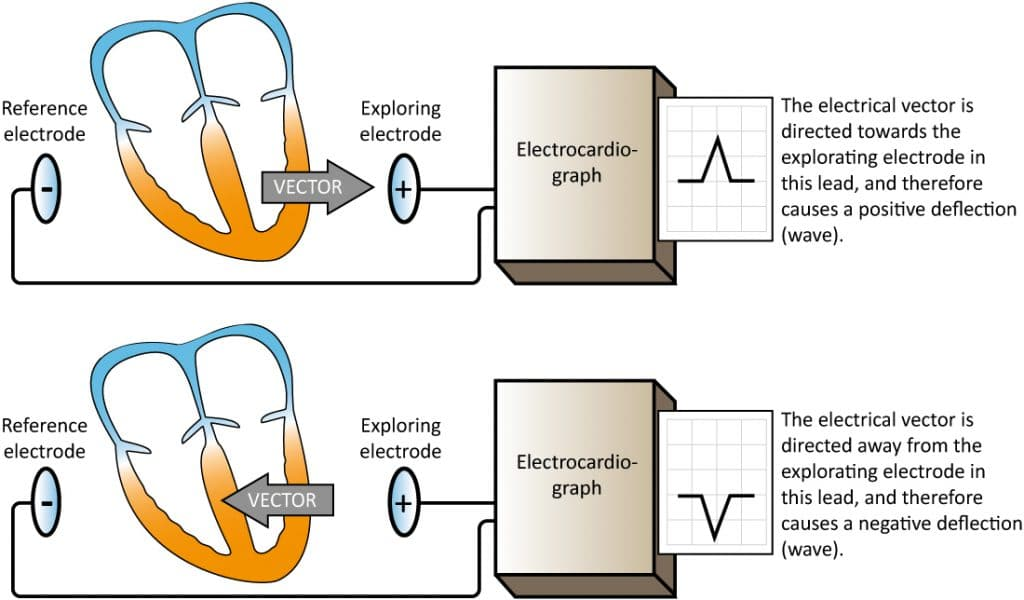 Figure 12. An ECG lead displays an ECG curve (diagram). At least two electrodes are necessary to obtain an ECG lead. One of the electrodes serves as reference and the other serves as exploring electrode. The electrocardiograph compares the electrical potentials detected in the electrodes. If a vectors travels towards the exploring electrode, and away from the reference electrode, a positive wave is printed.
