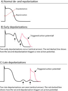 Mechanisms of cardiac arrhythmias: from automaticity to re-entry (reentry)