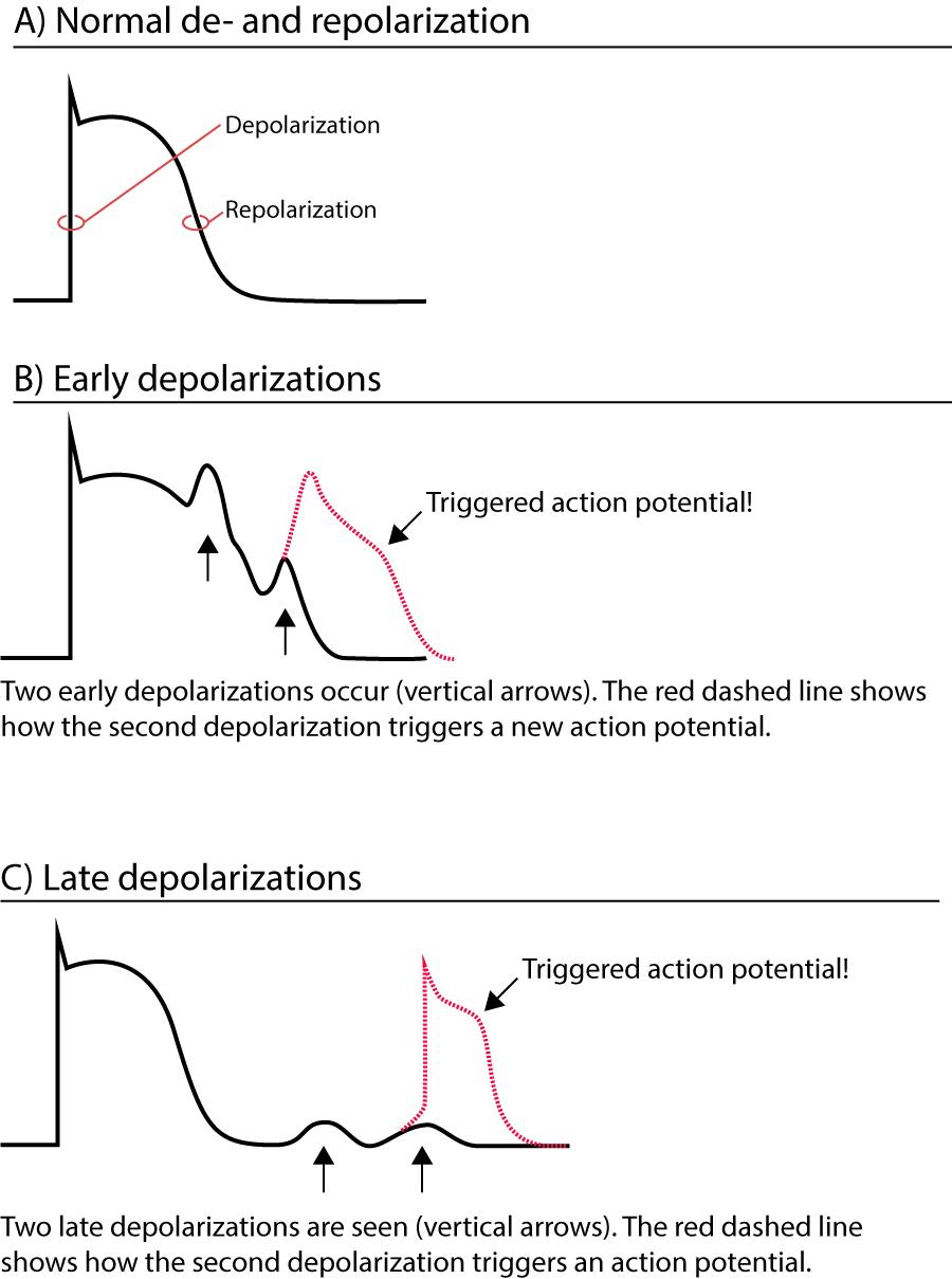 Mechanisms of cardiac arrhythmias: from automaticity to re