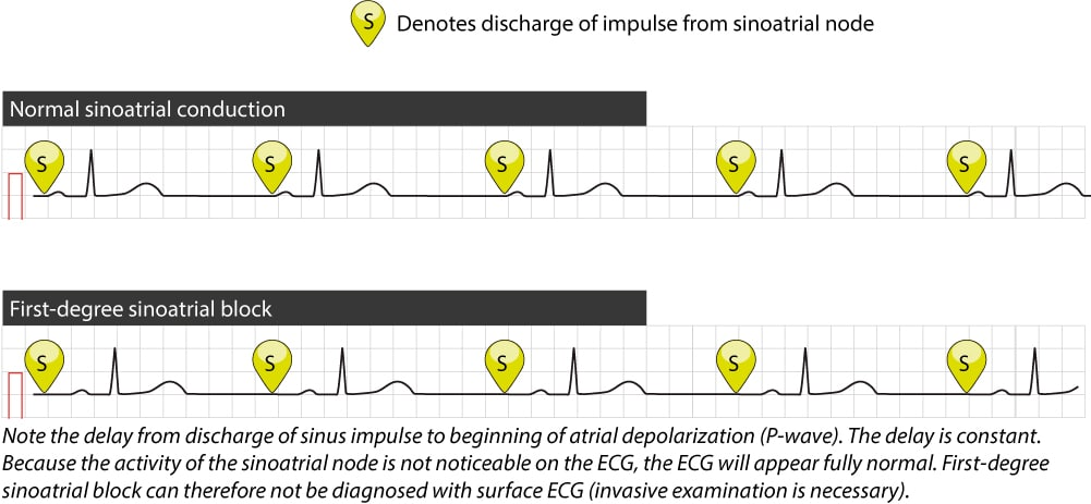 Figure 1. Upper tracing shows normal impulse conduction from the sinoatrial node to the atria. Atrial activation commences almost immediately after discharge of the impulse in the sinoatrial node. Lower tracing shows first-degree sinoatrial block, in which the time interval from impulse discharge to atrial activation is prolonged and this cannot be discerned on the surface ECG. As seen here, the rhythm is still regular and all complexes appear normal.
