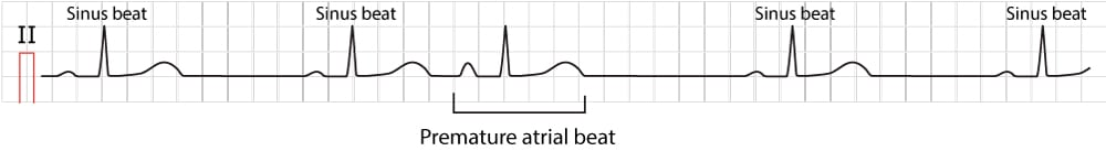Figure 1. Typical premature atrial contraction (beat/complex).