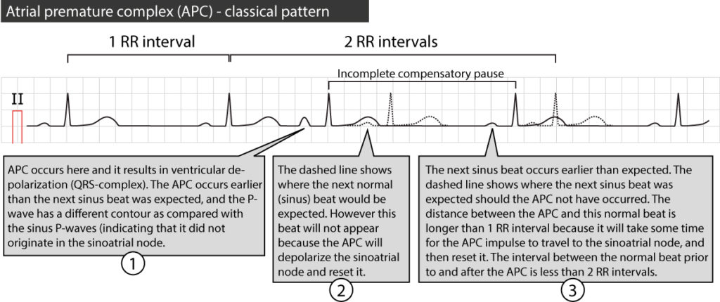 Figure 4. Premature atrial beat with incomplete compensatory pause.