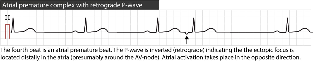 Figure 2. Atrial premature beat with retrograde P-wave.