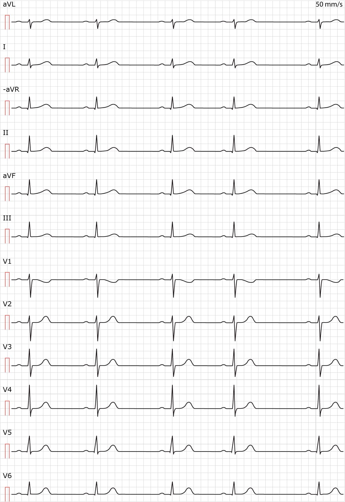 ECG TEST 1 – ECG learning