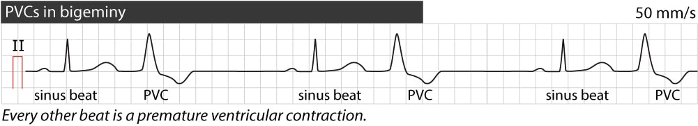 Figure 3. Premature ventricular contractions in bigeminy.