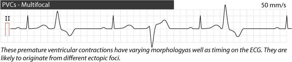Figure 5. Multifocal premature ventricular contractions.