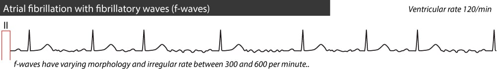Figure 1. Atrial fibrillation with fibrillatory waves (f-waves). The hallmarks of atrial fibrillation are: (1) irregular rhythm, (2) absence of distinct P-waves, (3) presence of f-waves and (4) rapid ventricular rhythm (in the vast majority of cases >100 beats per minute).