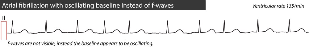 Figure 2. Atrial fibrillation without visible f-waves. Instead there is minute oscillations of the baseline.