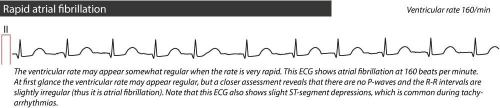 Figure 3. Rapid atrial fibrillation.