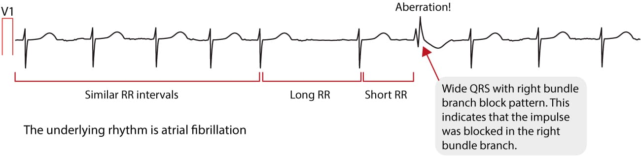 Figure 4. ECG showing Ashman's phenomenon during atrial fibrillation.