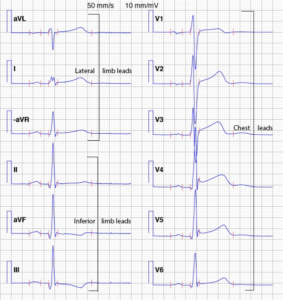 Figure 21. Presentation of the ECG leads according to the Cabrera format and aVR inverted to –aVR.