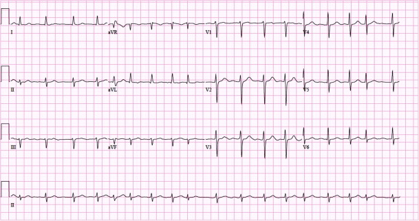 Figure 5. Example of 12-lead ECG with atrial fibrillation. Paperspeed: 25 mm/s.