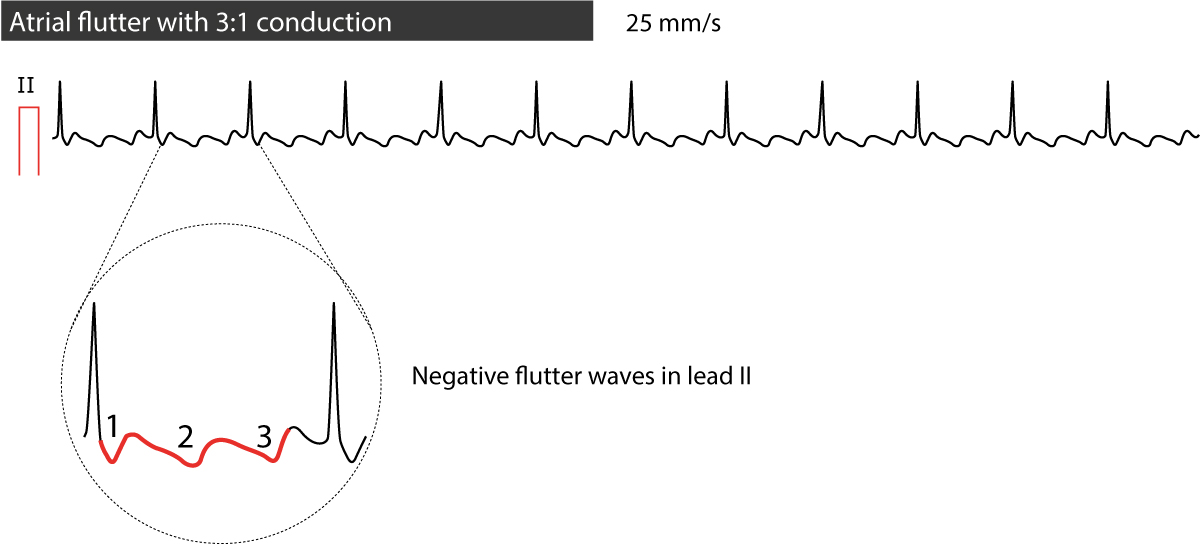 Figure 2. 3:1 conducted atrial flutter.