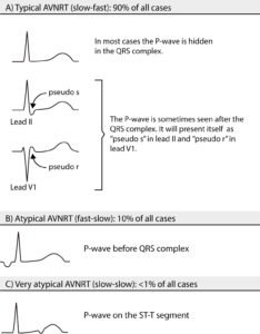Figure 2. Types of atrioventricular nodal reentry tachycardia (AVNRT).