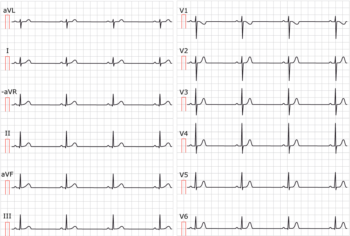 Figure 1. Sinus bradycardia. Paper speed 25 mm/s. Calculate the rate by dividing 300 by the number of large boxes between two cycles (e.g between two R waves). As seen in the figure, there are approximately 6.5 large boxes between two R waves. 300/6.5 equals 46 beats/min.