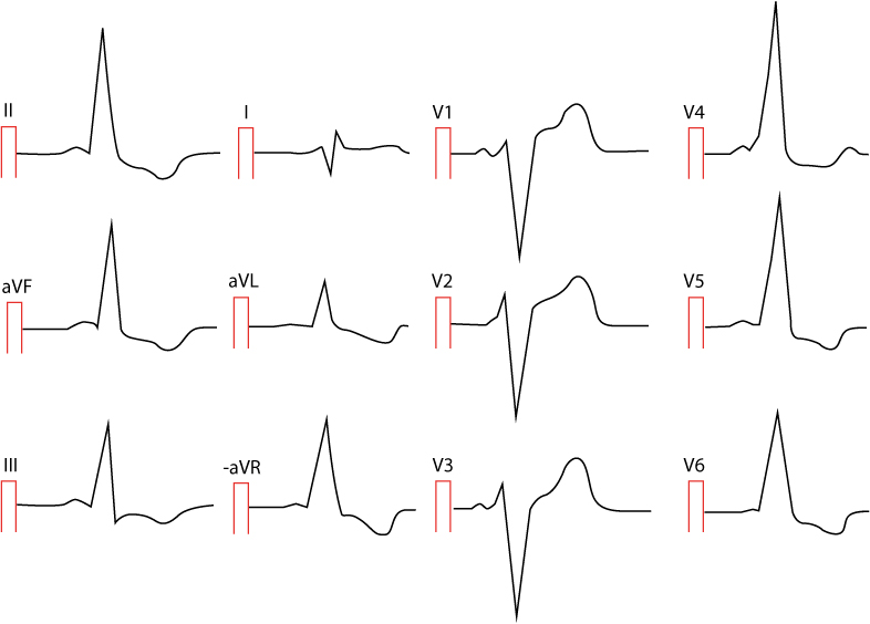 Figure 2. Pre-excitation in a 25 year old woman. There are numerous leads showing ST-segment depression and T-wave inversion. There is very short PR interval, wide QRS complexes and delta waves in numerous leads. Can you spot them?