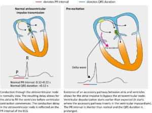 Figure 1. Hallmarks of pre-excitation on the ECG.