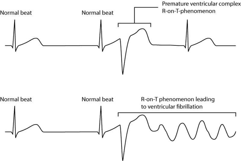 Figure 9. R-on-T phenomenon