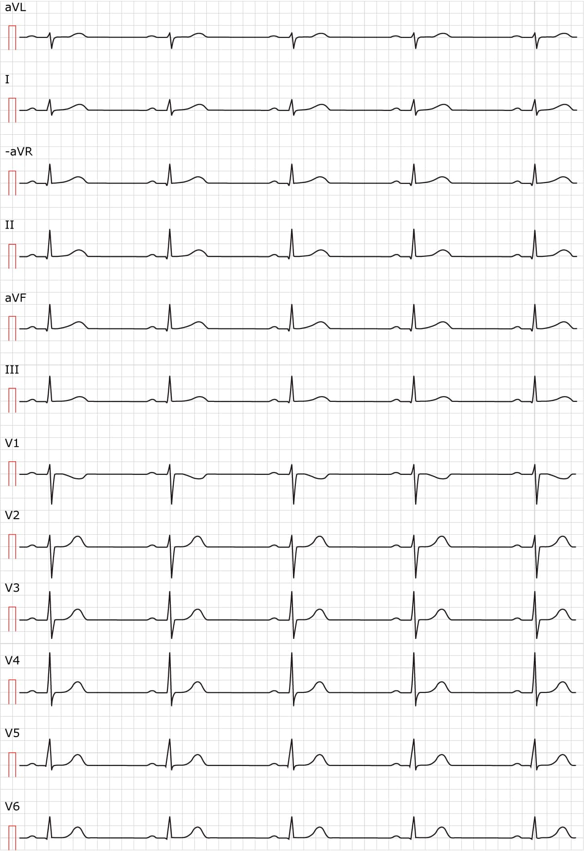 Figure 2. Sinus rhythm. Paper speed 50 mm/s.