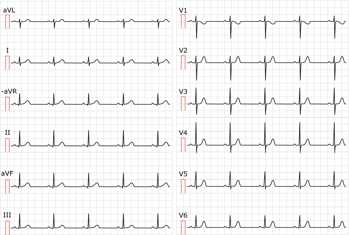 Figure 1. Sinus rhythm. Paper speed 25 mm/s.