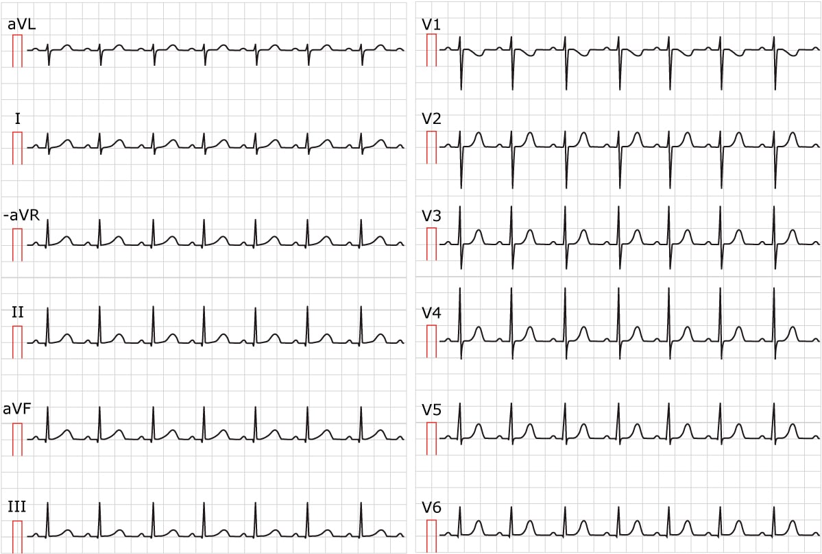 Figure 1. ECG showing sinus tachycardia. Paper speed 25 mm/s. Calculate the heart rate by dividing 300 by the number of large boxes between R-waves. There are approximately 3 large boxes between the R-waves; 300/3 equals 100 beats per minute.