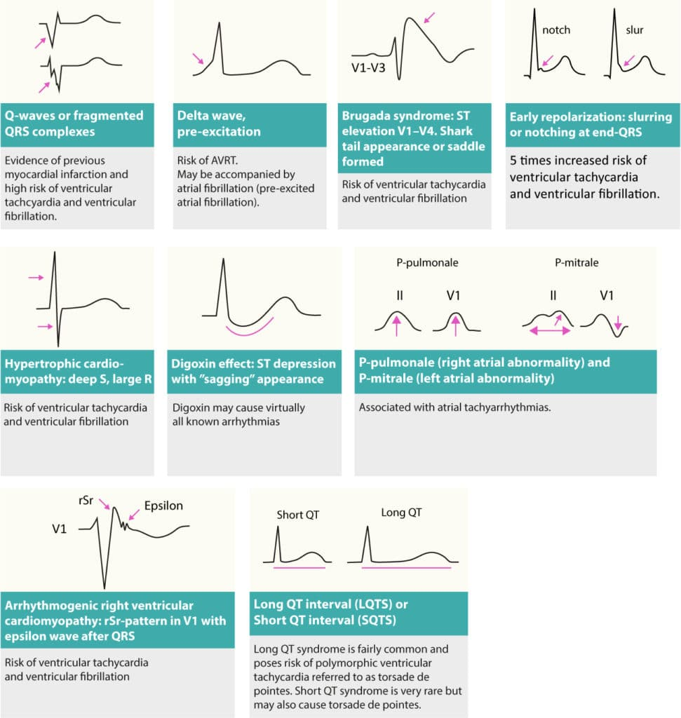 Figure 3. Changes on resting ECG that may reveal cause of arrhythmias (arrhythmia substrates). Patients presenting with tachycardia (tachyarrhythmia) may display any of these on their resting ECG.