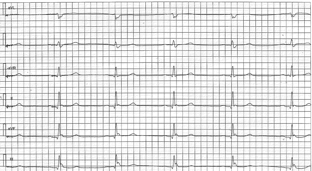 Figure 3. Osborn wave (J wave) in patient with early repolarization.