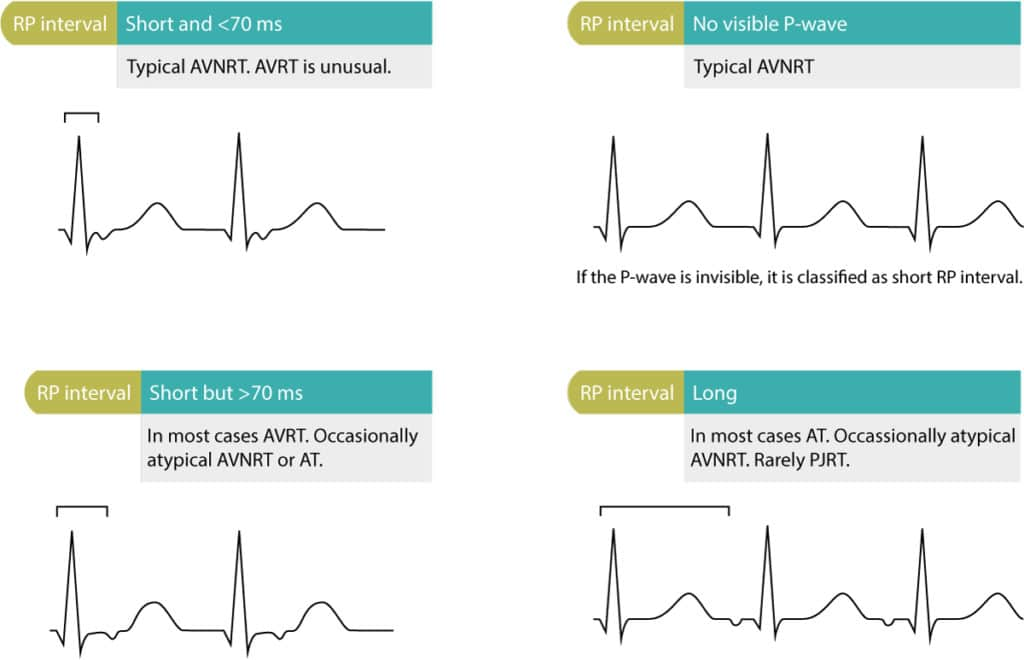 Figure 2. Differential diagnoses based on RP interval. The RP interval must be assessed in any tachycardia (tachyarrhythmia) with visible P waves.