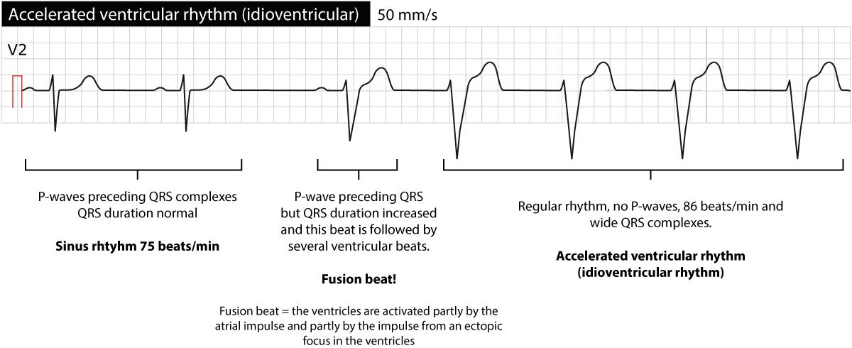 Figure 2. Idioventricular rhythm (accelerated ventricular rhythm).