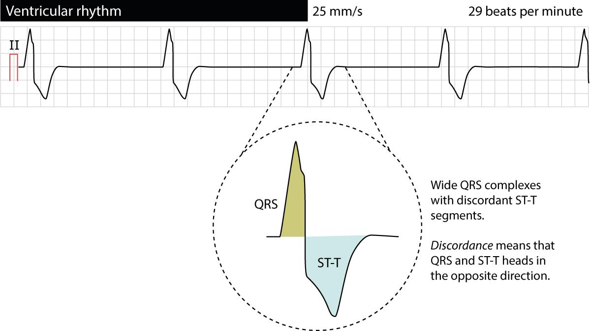 Figure 1. Ventricular rhythm.