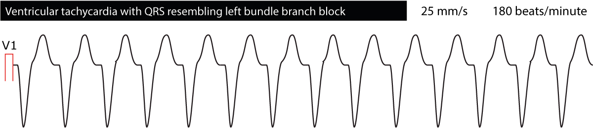 Figure 5. Ventricular tachycardia with left bundle branch block morphology.