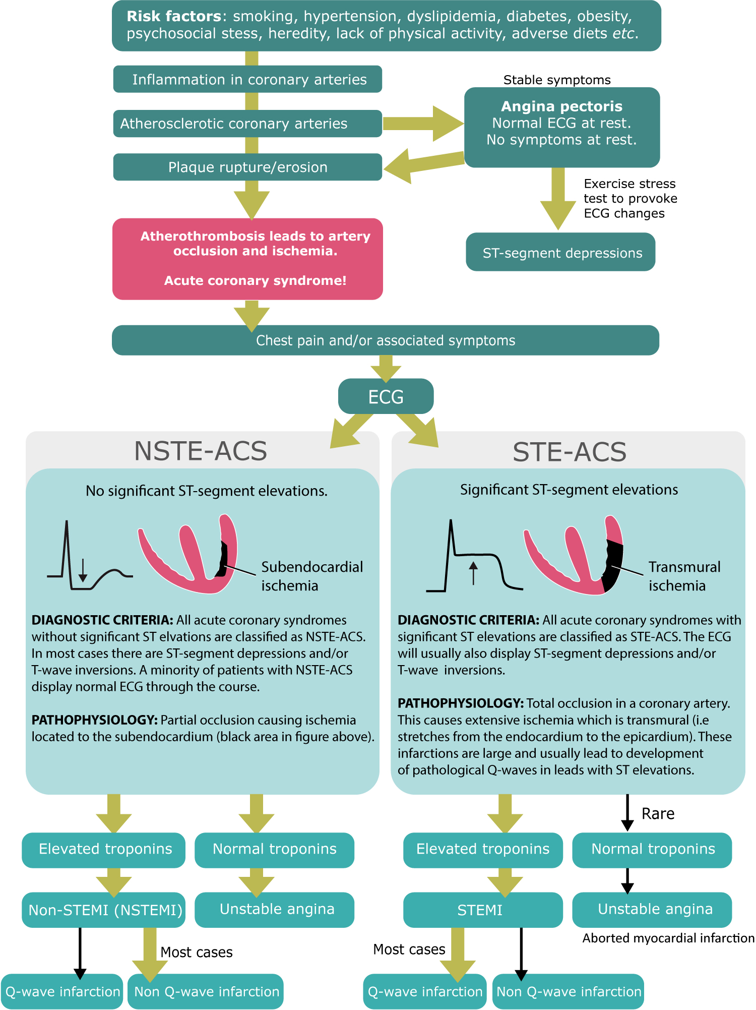 Figure 2. Classification of acute coronary syndromes into STE-ACS (STEMI, ST elevation myocardial infarction) and NSTE-ACS (Non STEMI and unstable angina [UA]).