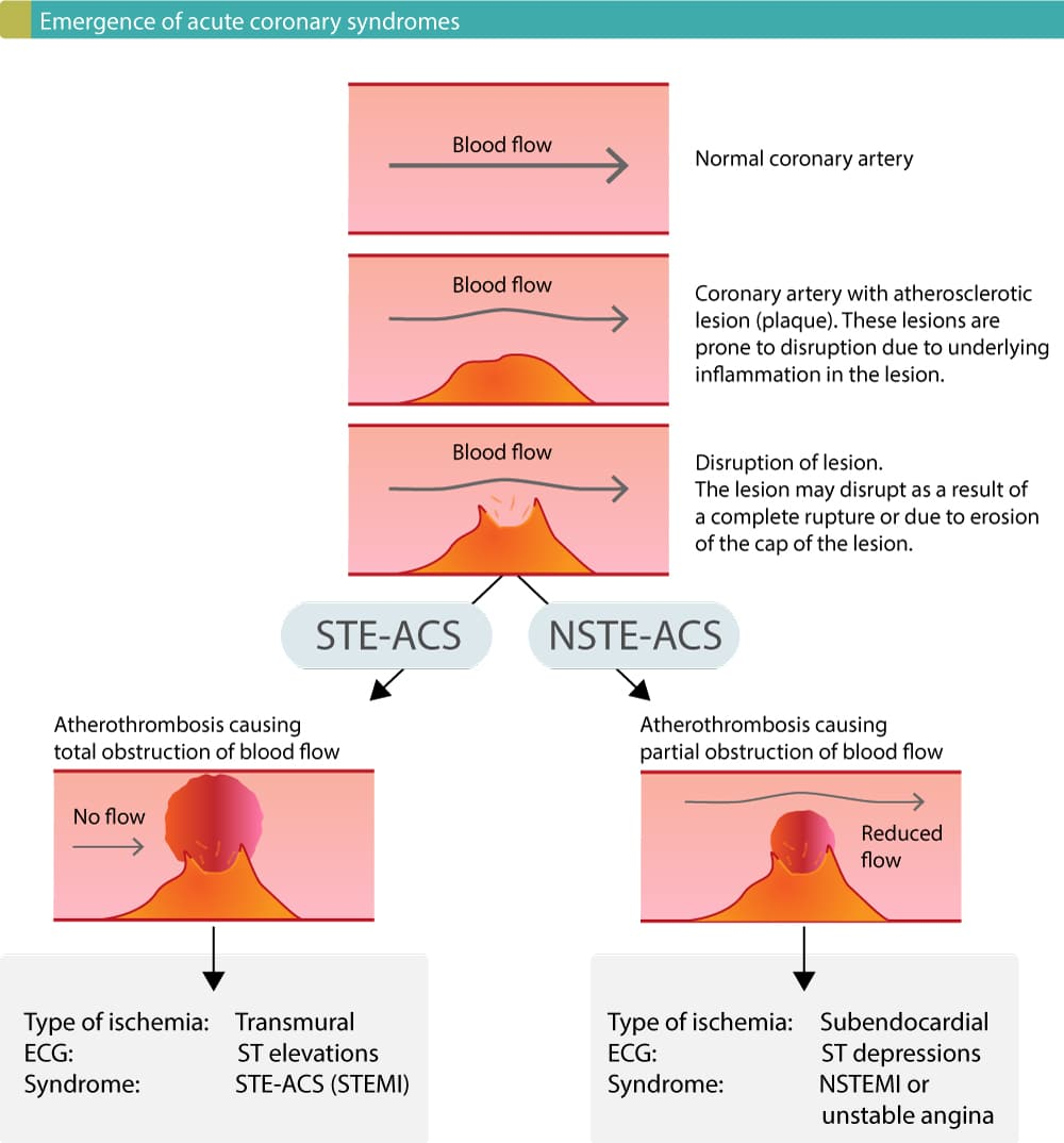 Figure 1. Disruption of atherosclerotic lesions result in atherothrombosis which causes abrupt reduction in coronary blood flow. STE-ACS (STEMI) occurs if the occlusion is complete (total), whereas NSTE-ACS (NSTEMI and unstable angina) occurs if the occlusion is partial.