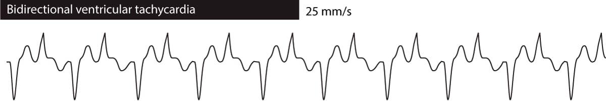 Digoxin Ecg Changes Arrhythmias Conduction Defects Treatment Ecg Echo