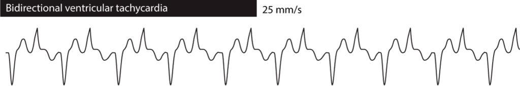 Figure 3. Bidirectional ventricular tachycardia.