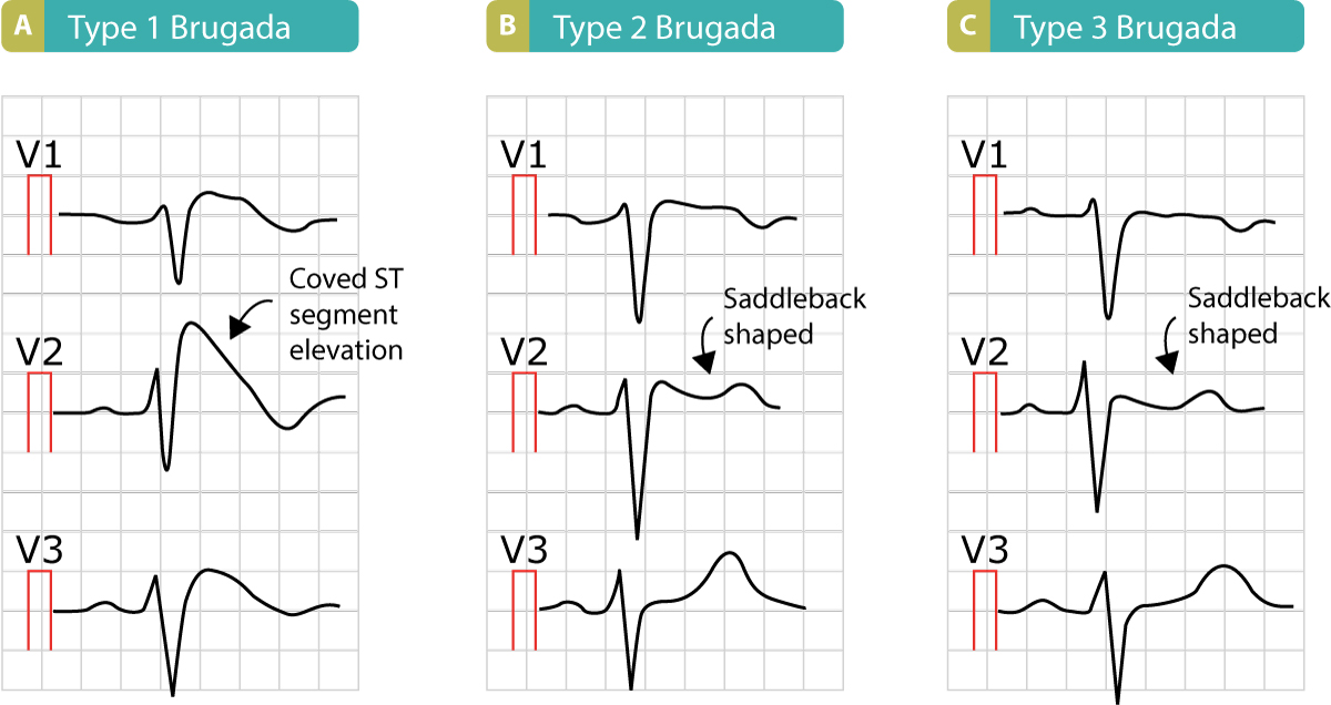 Figure 10. The three types of Brugada syndrome and the characteristic ST segment elevations.