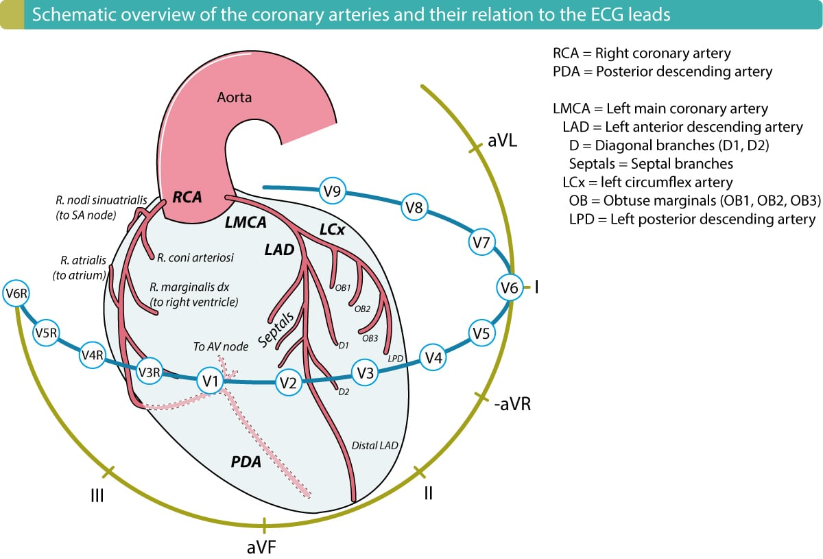 The right ventricle is supplied by the right marginal artery (r. marginalis dx), which originates from the right coronary artery (RCA). The RCA also supplies the inferior left ventricular wall in over 90% of all individuals. Hence, a proximal occlusion (in the RCA) which cuts off blood flow to the right ventricle, will also affect the inferior wall of the left ventricle in 90% of the cases.