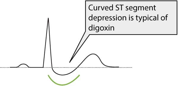 Figure 1. ST segment depression due to digoxin treatment.