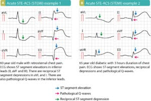 ECGs showing acute STEMI in two patients with severe chest pain. STEMI = ST elevation Myocardial Infarction.