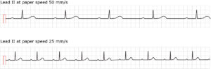 Figure 1. ECG in first-degree AV block. Both conventional paper speeds are shown.