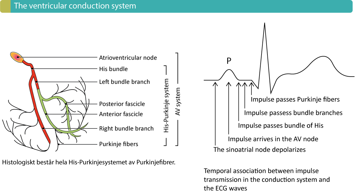 Figure 1. Components of the ventricular conduction system and the temporal association between the ECG waveforms and impulse transmission through the heart. Atrioventricular (AV) blocks occur due to dysfunction in the conduction system.