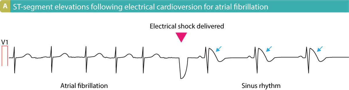 Figure 12. Electrical cardioversion resulting in ST-segment elevations.