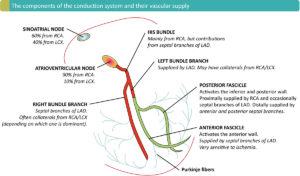Figure 1. The component of the cardiac conduction system and the vascular supply. RCA = right coronary artery. LAD = Left anterior descending coronary artery. LCX = left circumflex coronary artery.