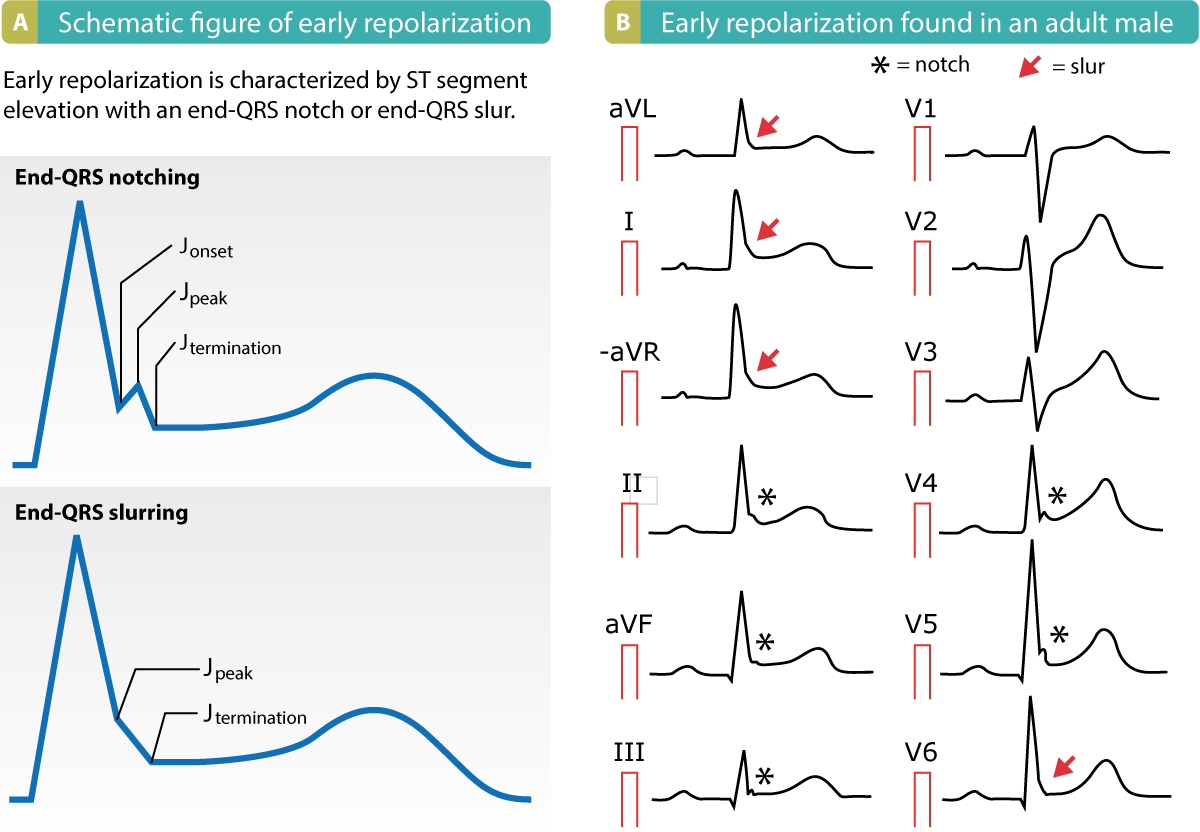 Figure 1. Early repolarization pattern on ECG. Note the end-QRS notches and slurs, as well as the ST segment elevations.