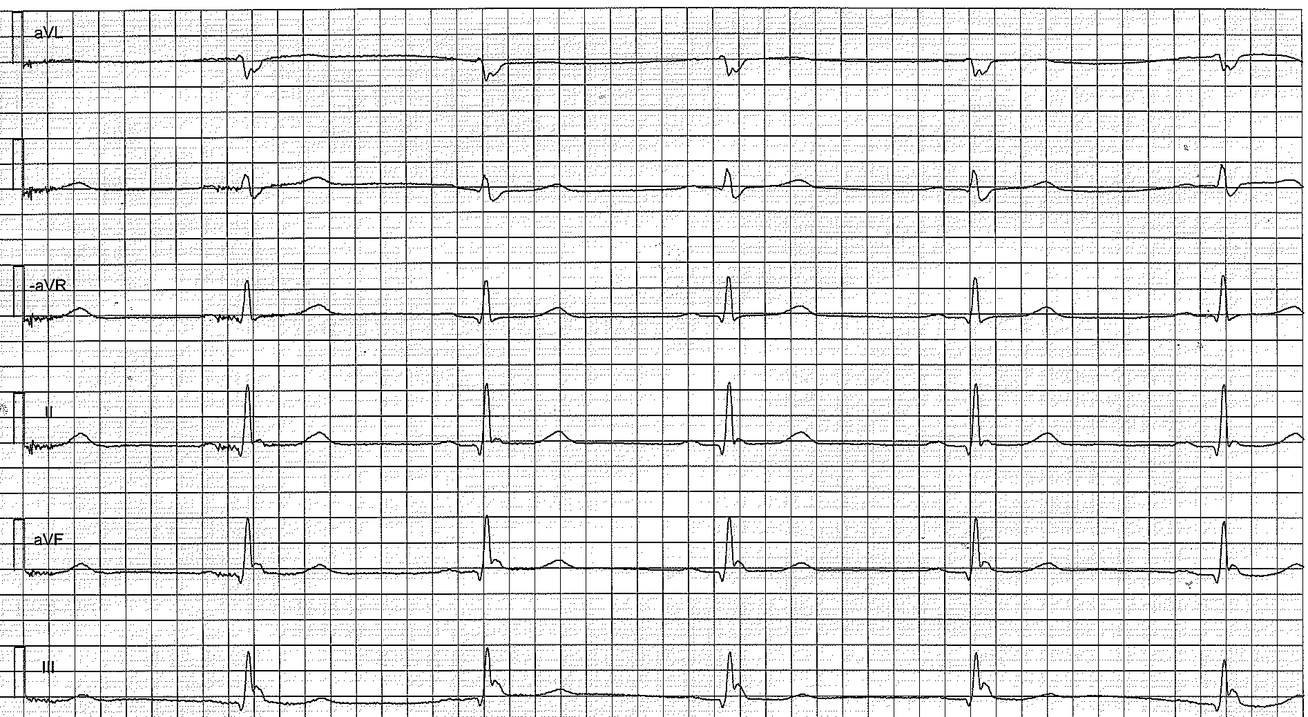 Figure 2. Limb leads showing early repolarization pattern. This patients brother died from sudden cardiac arrest at the age of 29.