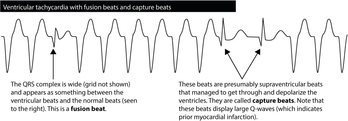 Figure 6. Capture beats and fusion beats seen during ventricular tachycardia.