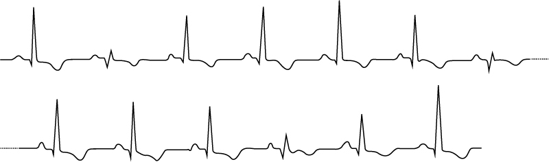 Figure 1. Electrical alternans in patient with cardiac tamponade. The ECG shows varying QRS and T-wave amplitudes.