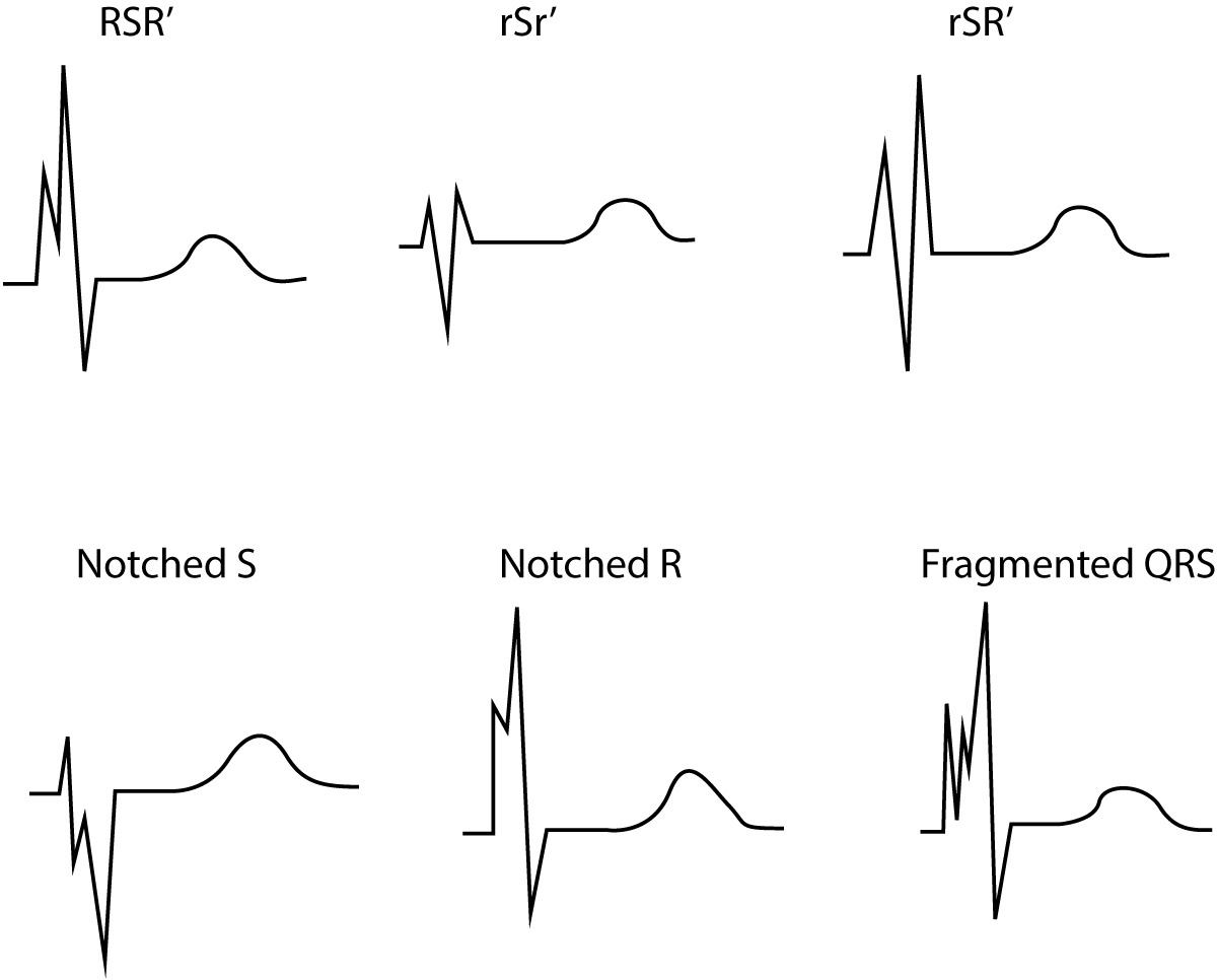 Figure 2. Fragmented QRS complex. These QRS configurations are also indicate of previous myocardial infarction.