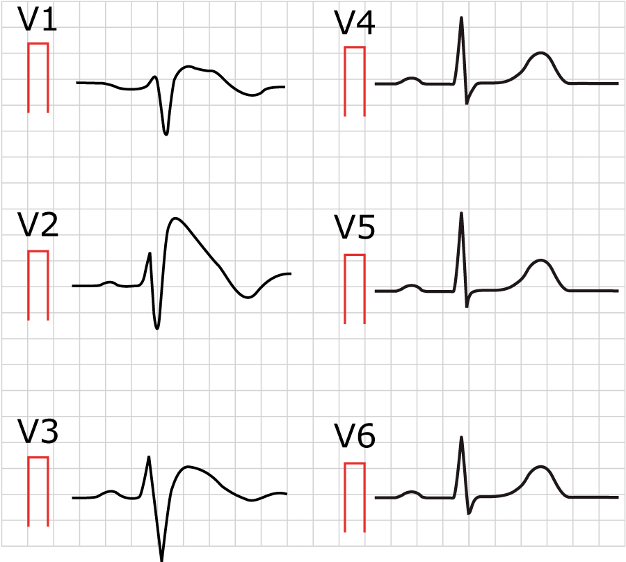 Figure 2. Brugada syndrome. Note the gigantic J wave in V2 and V3. This may be confused with right bundle branch block. Paper speed 50 mm/s.